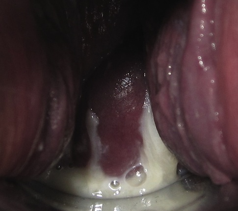 Bleeding after sex with an iud